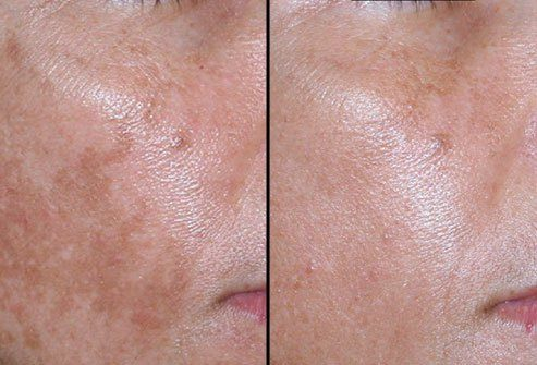 pittsburgh chemical peel pca peels